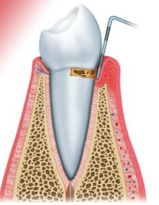 medición del sarro de tu diente