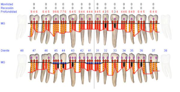 periodontograma, tratamiento de periodoncia en sevilla