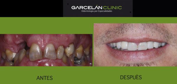 implantes dentales en sevilla, ortodoncia en sevilla, estética dental en sevilla