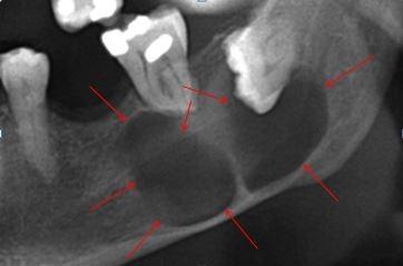 Radiografía Quiste ángulo mandíbula