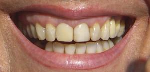 Antes alargamiento de corona, estética dental en sevilla, carillas en sevilla, carillas de composite en sevilla, carillas de porcelana en sevilla, blanqueamiento dental en sevilla