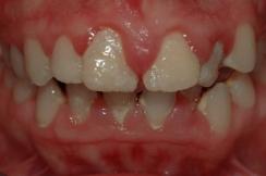 boca con gingivitis, periodoncia en sevilla, sangrado de encías, infección de encías, solución a la periodontitis