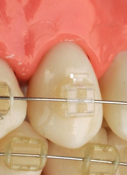 ortodoncia sevilla, clínica dental sevilla, dentista sevilla