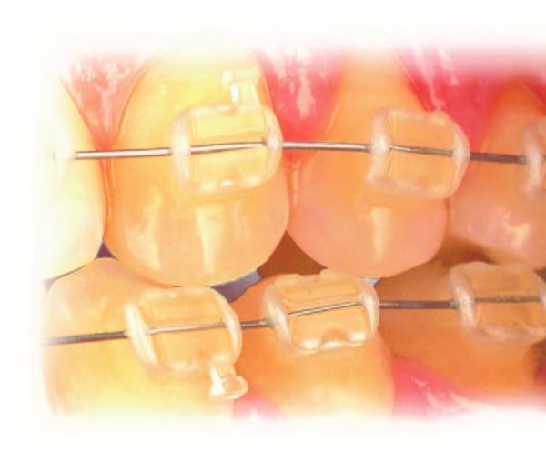 clínica dental sevilla, dentista sevilla, ortodoncia sevilla