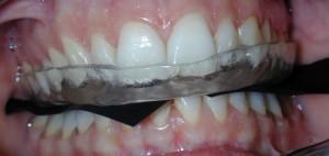 Realización de férula de descarga por la Dra. Orozco en nuestra clínica dental en Sevilla