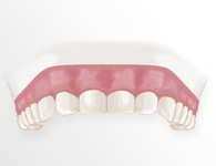 dientes1