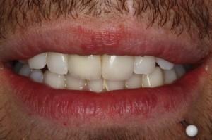 prótesis dental en sevilla