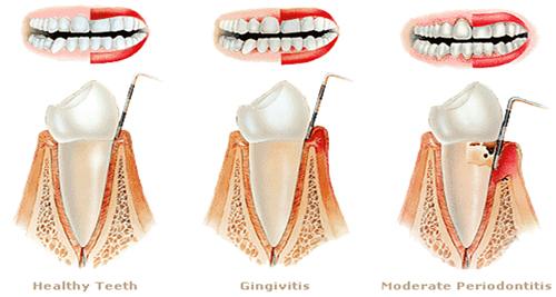 periodontitis_dientes_anteriores