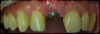 antes de tratamiento de reposición de dientes, carillas de composite en sevilla