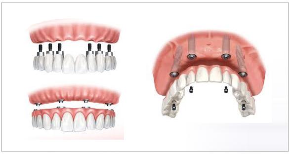 implante dental en sevilla, implantes dentales en sevilla, precio implante dental