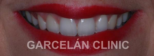 sonrisa perfecta después del tratamiento de la gingovoplastia, estética dental sevilla, dentista sevilla