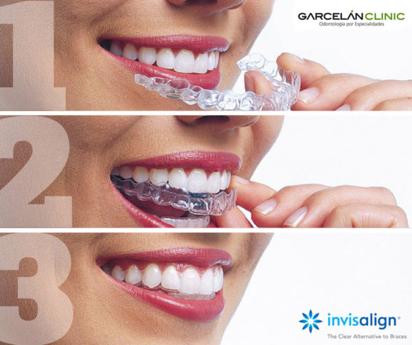 3 pasos para alinear tus dientes