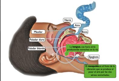 apnea del sueño y ronquidos en sevilla