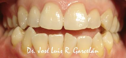 ortodoncia sevilla