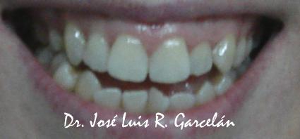 sonrisa previa a tratamiento de ortodoncia