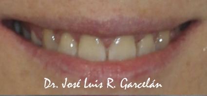 Sonrisa tras tratamiento de ortodoncia