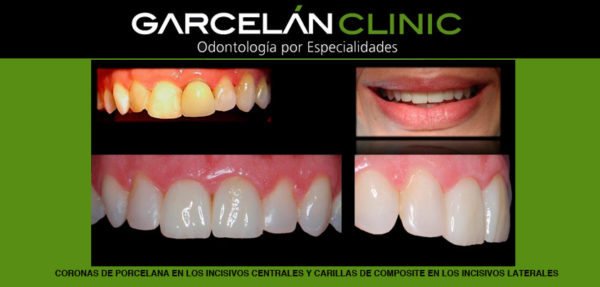 coronas de porcelana, dentista sevilla, clínica dental sevilla