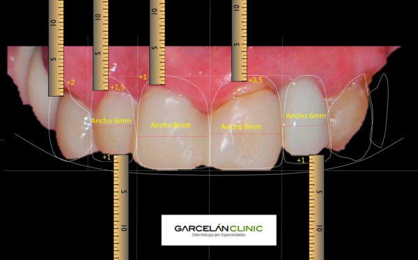 diseño digital de sonrisa en sevilla, dentista sevilla, clinica dental sevilla