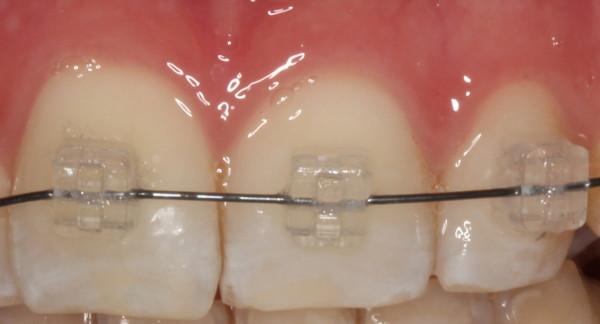 Detalle brackets Camaleón, ortodoncia sevilla