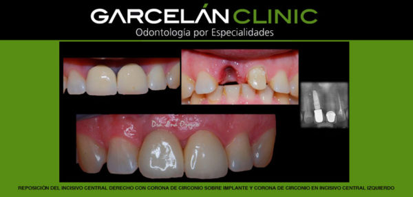 dentista sevilla, clinica dental sevilla