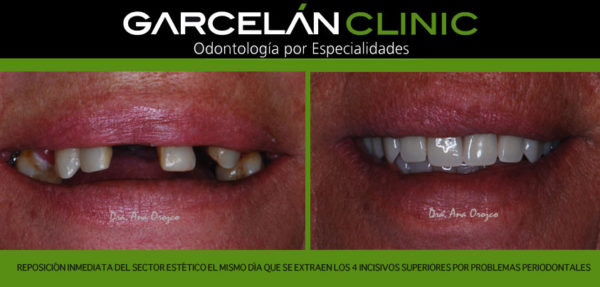 estetica dental sevilla, dentista sevilla, clinica dental sevilla