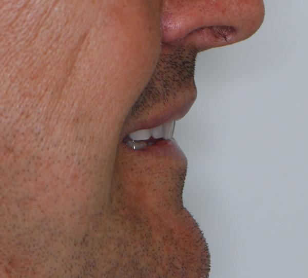 SOBREDENTADURA de paciente tras tratamiento de prótesis dental