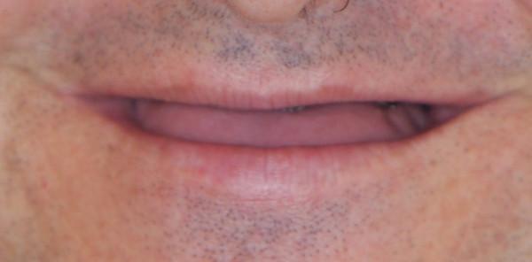 boca de paciente desdentado antes de tratamiento de prótesis dental