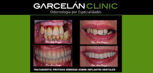 protesis hibridas sobre implantes, dentista sevilla, clinica dental sevilla