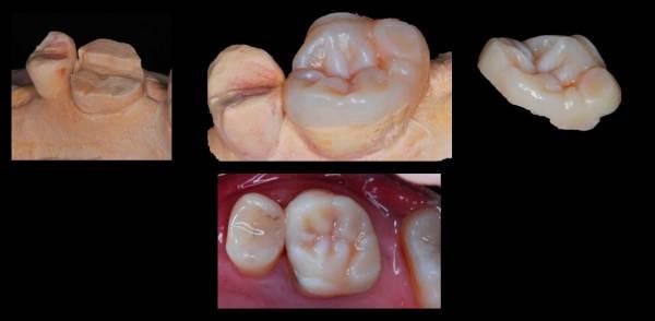 tratamiento de estética en dientes posteriores, diseño digital de sonrisa en sevilla, estética dental en sevilla