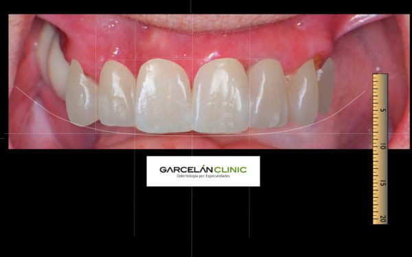 diseño digital de sonrisa sevilla, dentista sevilla, clinica dental sevilla
