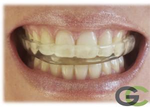 ferúla de descarga sevilla, clínica dental sevilla, dentista sevilla