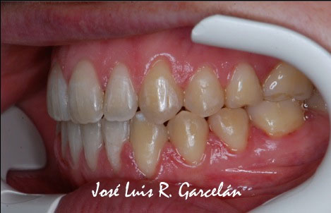 ortodoncia sevilla, mordida abierta, dentista sevilla