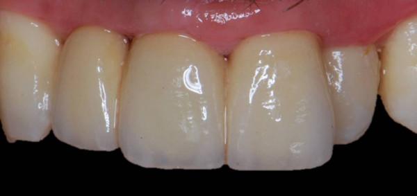 boca tras del tratamiento de puente de circonio-porcelana, prótesis dental en Sevilla