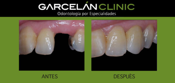 prótesis sobre implantes, dentistas sevilla