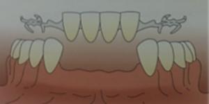 prótesis dental sevilla, prótesis dentales en sevilla, prótesis sobre implantes en sevilla