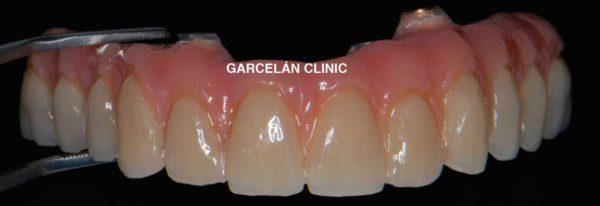 prótesis hibrida superior, dentista sevilla, clinica dental sevilla