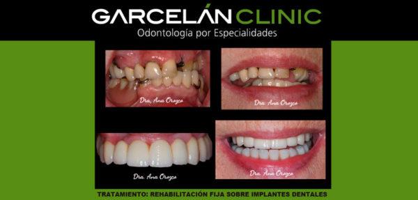 rehabilitación fija sobre implantes, dentista sevilla, clinica dental sevilla