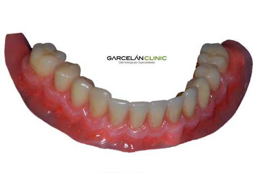sobredentadura-inferior-fuera-dentista-sevilla
