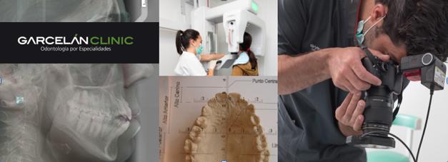 estudio de caso de ortodoncia