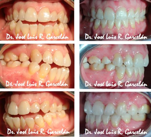 caso de ortodoncia en sevilla