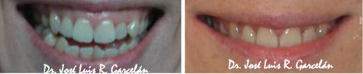 antes y después caso de ortondoncia Garcelán Clinic, ortodoncia en sevilla