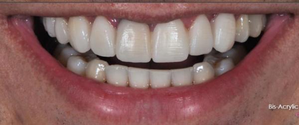 MOCK UP de un diseño digital de sonrisa, diseño digital de sonrisa en sevilla