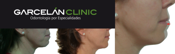 comparativo caso de ortodoncia en sevilla, ortodoncia en sevilla