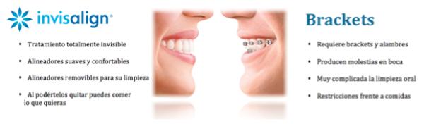 Diferencias entre brackets e Invisalign, tratamientos dentales para novias en sevilla