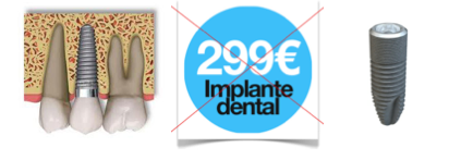 precio de implante dental en sevilla