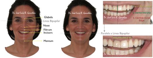 claves para saber si te han hecho un buen estudio de ortodoncia