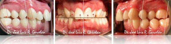 Análisis de la ortopantomografía, claves para saber si te han hecho un buen estudio de ortodoncia