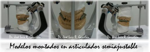 modelos montados en articuladores semiajustables, claves para saber si te han hecho un buen estudio de ortodoncia