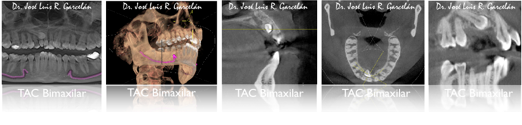 tomografía computerizada dental de haz cónico, claves para saber si te han hecho un buen estudio de ortodoncia