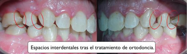 espacios interdentales, claves para saber si te han hecho un buen estudio de ortodoncia